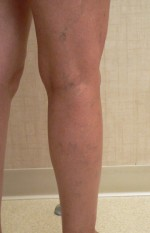 Sclerotherapy Photos