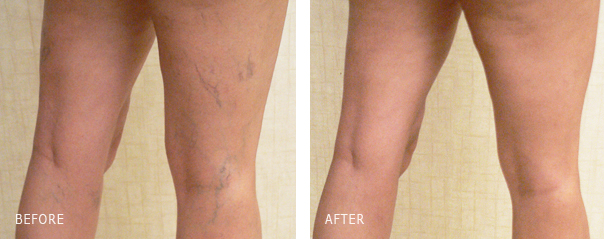 Sclerotherapy Spider Vein