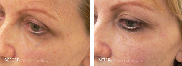 Facial Vein Laser Treatment Before and After Photos